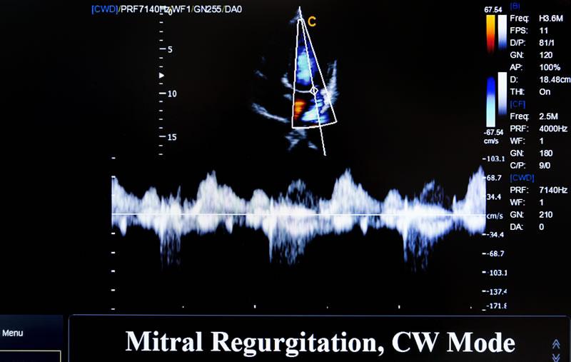 new-port-richey-mitral-heart-valve-regurgitation.jpg