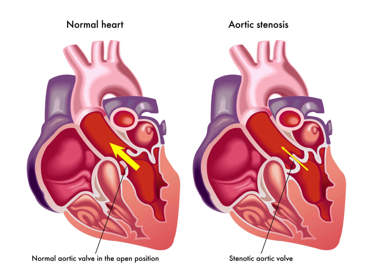 aortic valve surgery Archives - Dr. Peter Mikhail