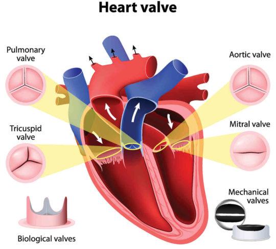 heart-valve-e1489425571818-540x488.jpg