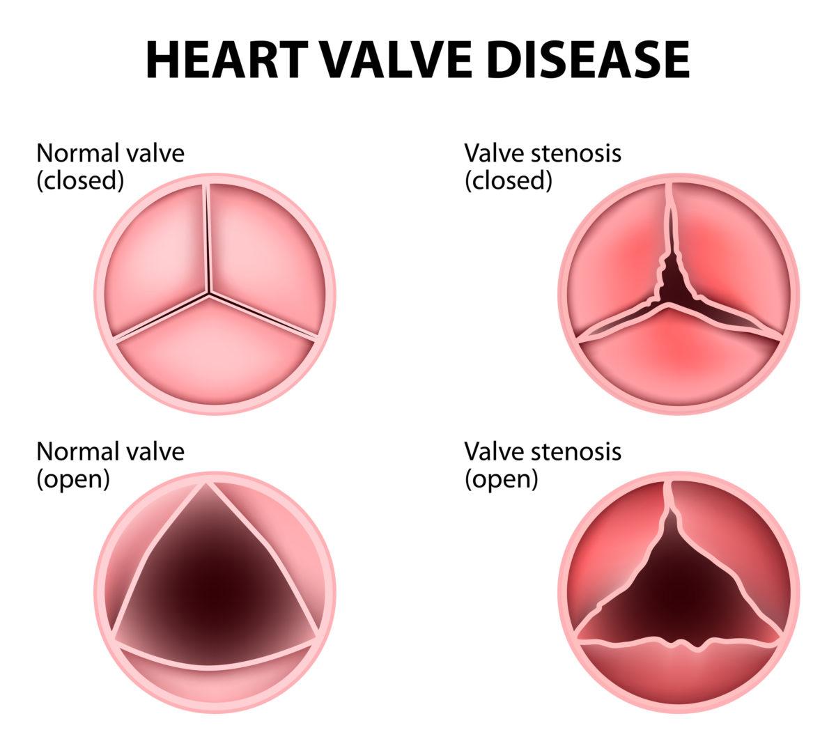 bigstock-Heart-Valve-Disease-113282243-1200x1071.jpg